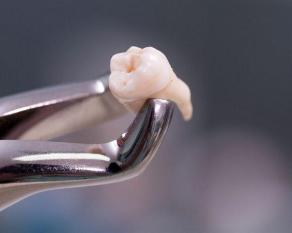 Удалить зуб — качественно и быстро